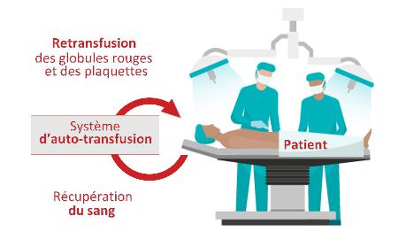 biotech info articles graphique transfusion i sep