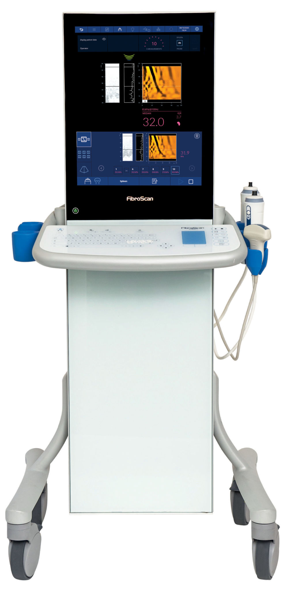 biotech info articles fibroscan expert spleen interface