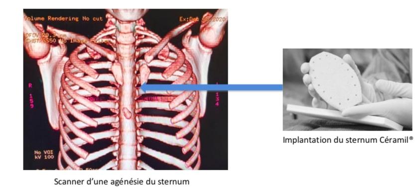 biotech info articles scan i ceram